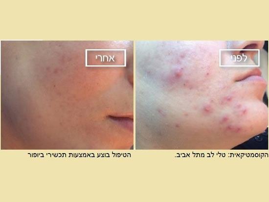 לפני ואחרי טיפול קוסמטיקאית צילום: טלי לב