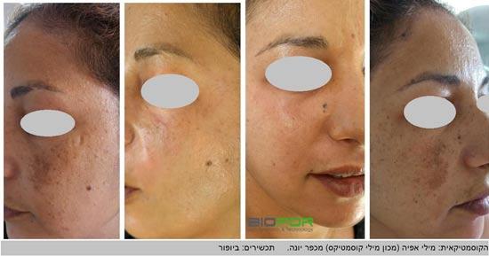 """לפני ואחרי עור עם פיגמנטציה/ צילום: יח""""צ"""