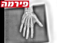 צילום רנטגן של כף יד / צילום: יחצ