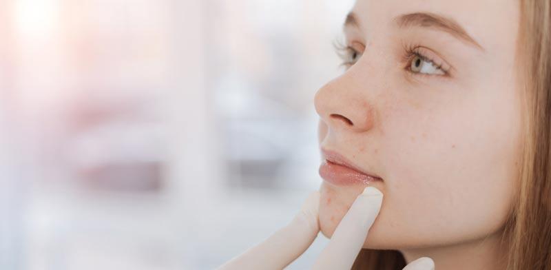 פיגמנטציה: מה גורם לה ומהן הדרכים להתמודד עימה /   צילום:Shutterstock/ א.ס.א.פ קרייטיב