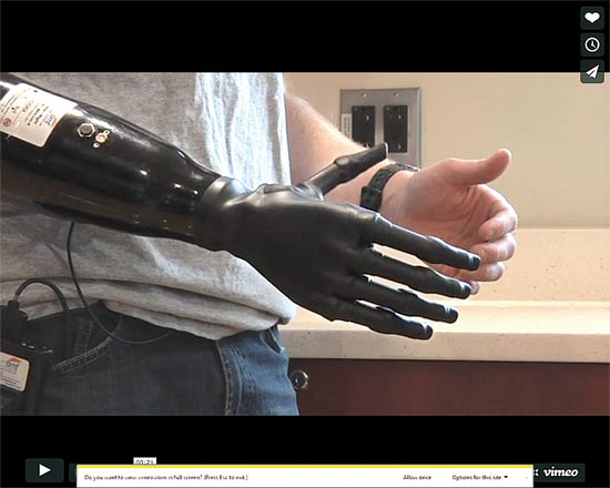 דגם של מערכת העברת פקודות ממוח של קטוע יד לפרוטזה/ מתוך הוידאו של אתא החברה
