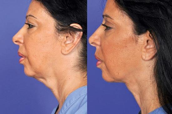 """טיפולי צוואר חדשניים / צילום: מרפאת ד""""ר לריסה ברק"""
