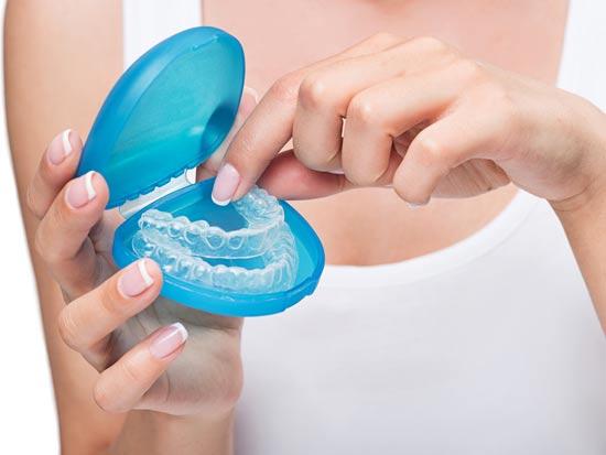 סד לשיניים. המטופל יכול להרכיב אותו בבית לשם הלבנת השן/ צילום:Shutterstock/ א.ס.א.פ קרייטיב