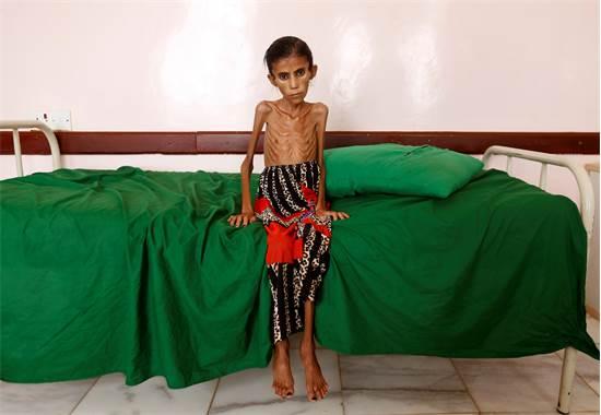 """פטימה חאדי בת ה-12 מצפון תימן שוקלת רק 10 ק""""ג, ומהווה קורבן אחד בלבד של העימות עם ערב הסעודית, דצמבר 2019 / צילום: Khaled Abdullah, רויטרס"""