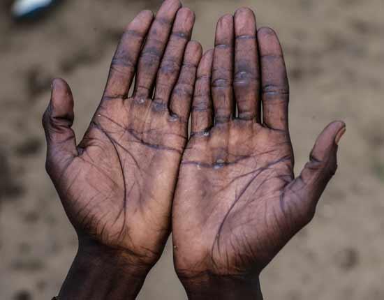 כפות ידיים פצועות של עובד בחקלאות בדרום איטליה/  צילום: Sean Smith