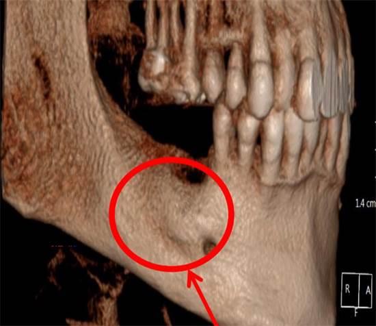 תמונה אחרי - עצם הלסת לאחר השלמת החסר בעצם של בונוס / צילום: תמונה פרטית
