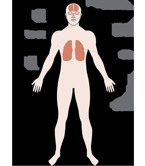 התסמינים ארוכי הטווח ב-143 איטלקים שחלו בקורונה ואושפזו