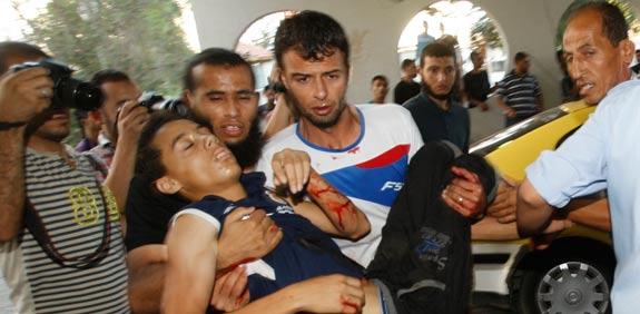 injured Palestinians