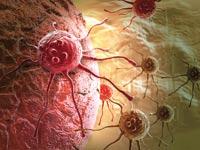 סרטן, תאי גזע, ביומד / צילום: thinkstock