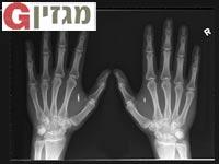 """ידו של האנס שובלאד  / צילום: יח""""צ"""