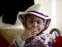 ילד סורי בן 5 שאיבד את עינו בקרבות   / צילום:רויטרס