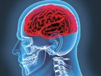 שבץ מוחי / צילום:  Shutterstock/ א.ס.א.פ קרייטיב