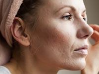 כיצד נוצרות צלקות בעור, ומהו סוג הטיפול הנכון עבורן?