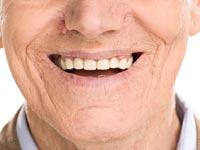 רבים חווים אובדן שיניים טבעי כתוצאה מטיפול לקוי / צילום:Shutterstock/ א.ס.א.פ קרייטיב