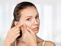 טיפולי אקנה /צילום:  Shutterstock/ א.ס.א.פ קרייטיב