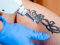 הסרת קעקועים: מהן השיטות להשבת העור למצבו הטבעי?