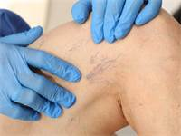 טיפולים אסתטיים בוורידי הרגליים - מהן השיטות הנפוצות?