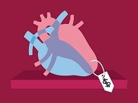 הדפסת איברים