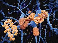 הצטברות של חלבוני עמילואיד בטא, שנקשרת במחלת האלצהיימר / צילום: shutterstock, שאטרסטוק