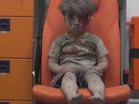 ילד סורי פצוע/ צילום: מתוך הוידאו