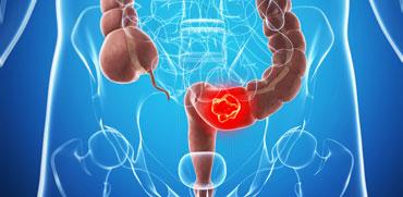 סרטן המעי הגס - ההישרדות של החולים עולה משנה לשנה