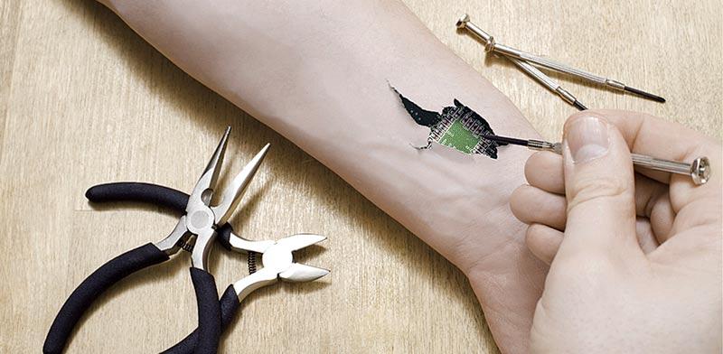 שתל תת עורי / אילוסטרציה:  Shutterstock/ א.ס.א.פ קרייטיב