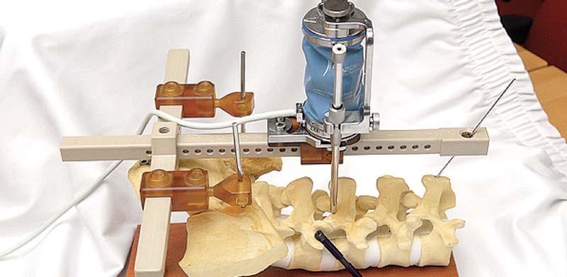 מערכת ניתוח של מזור לעמוד השדרה / צילום: איל יצהר