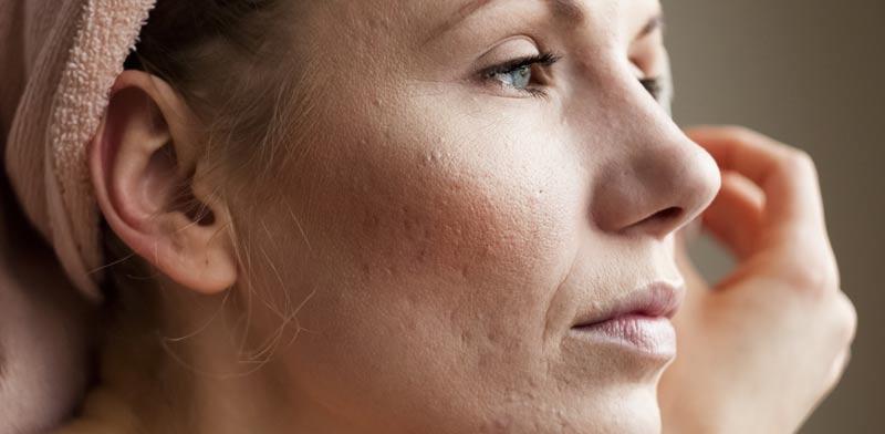 צלקות בעור. אינן נעלמות מעצמן לעולם / צילום:Shutterstock/ א.ס.א.פ קרייטיב