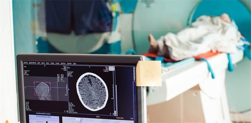 MRI - Photo: Shutterstock
