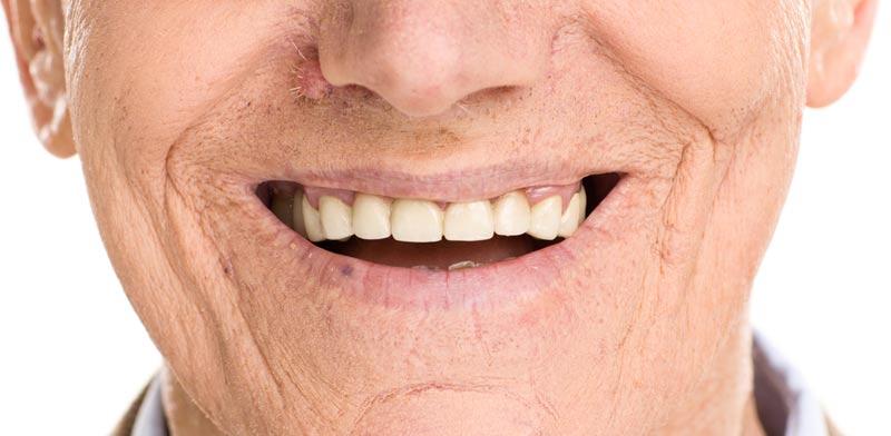 רבים מאבדים שיניים כתוצאה מטיפול לקוי / צילום:Shutterstock/ א.ס.א.פ קרייטיב