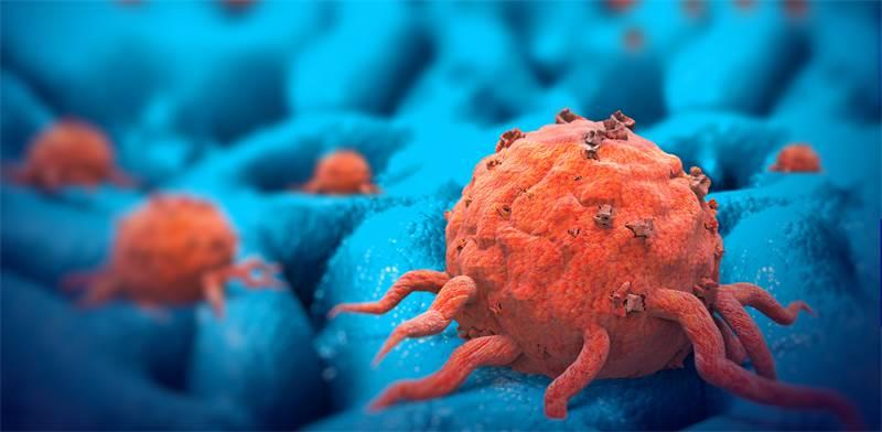 סרטן הלבלב. הטיפול הרופתי החדש מעניק תקווה/צילום: Shutterstock/ א.ס.א.פ קרייטיב