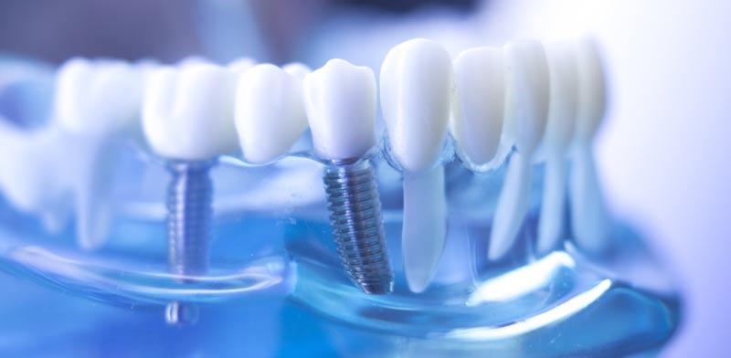השתלת שיניים. העצם היא קריטית לביצוע ההליך / צילום: Shutterstock / א.ס.א.פ קרייטיב