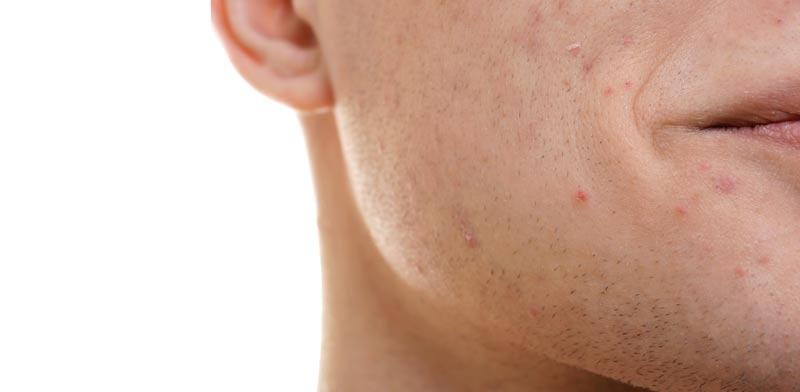 הקשר בין מצוקות נפש לעור / צילום:  Shutterstock/ א.ס.א.פ קרייטיב