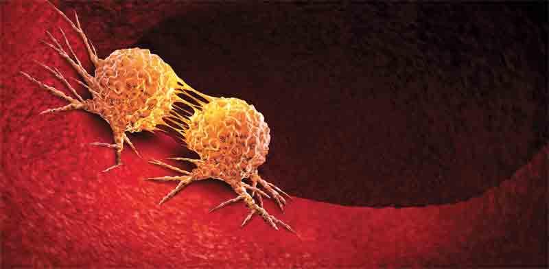 תאים סרטניים / אילוסטרציה: Shutterstock א.ס.א.פ קריאייטיב,