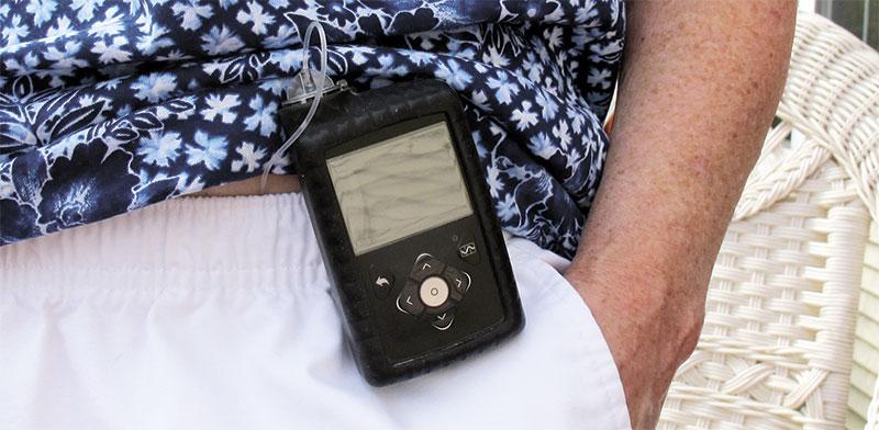 משאבת אינסולין. חוסכת ביקורים אצל הרופא / צילום: Wilson Ring, Associated Press