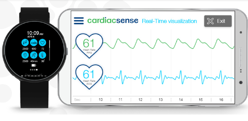 CardiacSense  / Photo: CardiacSense website